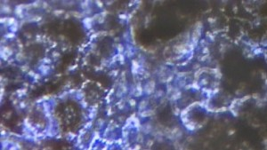 150929175726_stem_cell_cure_640x360_bbc_nocredit